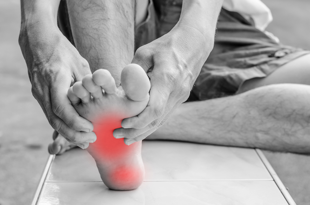 Man With Plantar Fasciitis